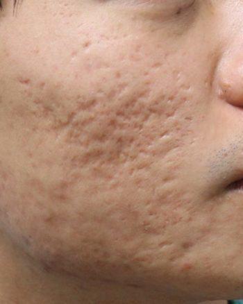 depressed acne scars