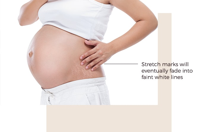 Pregnancy Stretch Marks