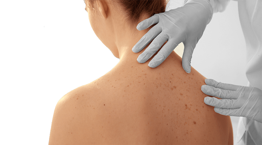 skin cancer early detection and mole screening