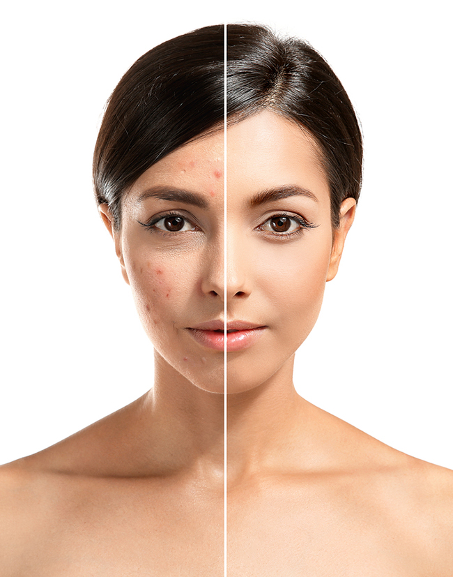 get rid of acne scars singapore