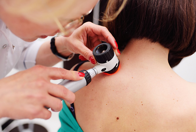 facial mole removal cost
