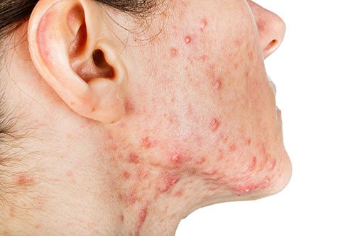 cystic acne singapore