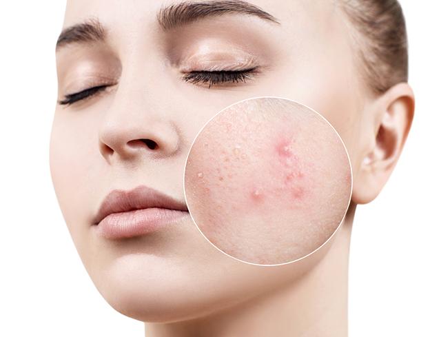 singapore best acne scar treatment