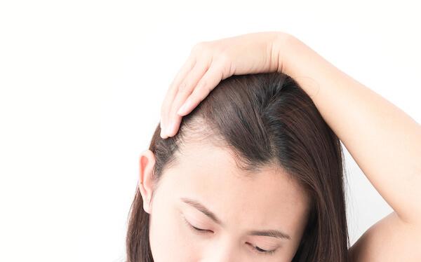 Hair Transplant, Hair Transplant Singapore