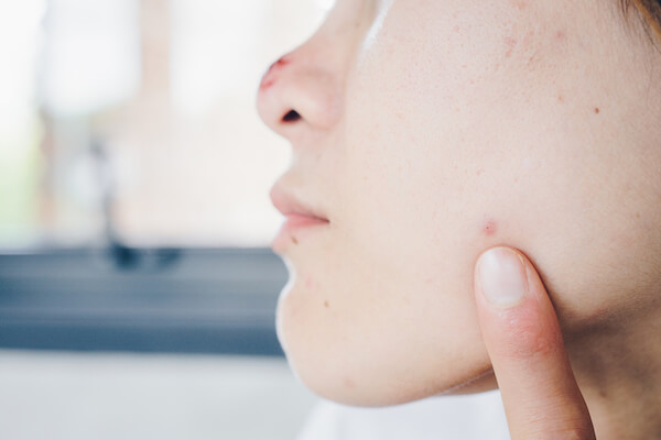Laser Treatment For Acne, Laser Treatment For Acne Scars Singapore