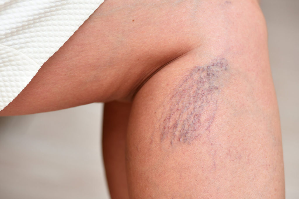 Spider Veins on Legs with Vbeam Laser