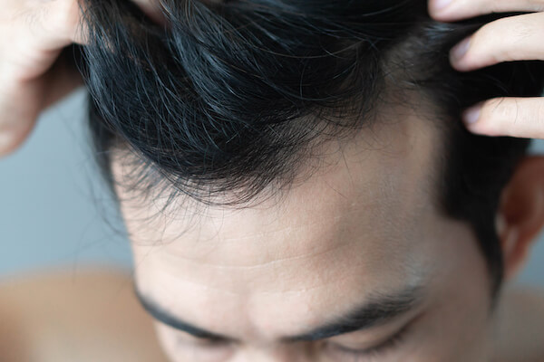 Top Causes Of Hair Loss And The Ideal Treatment Solution