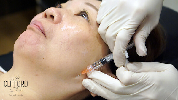 Acne Scar Removal, Acne Laser Treatment