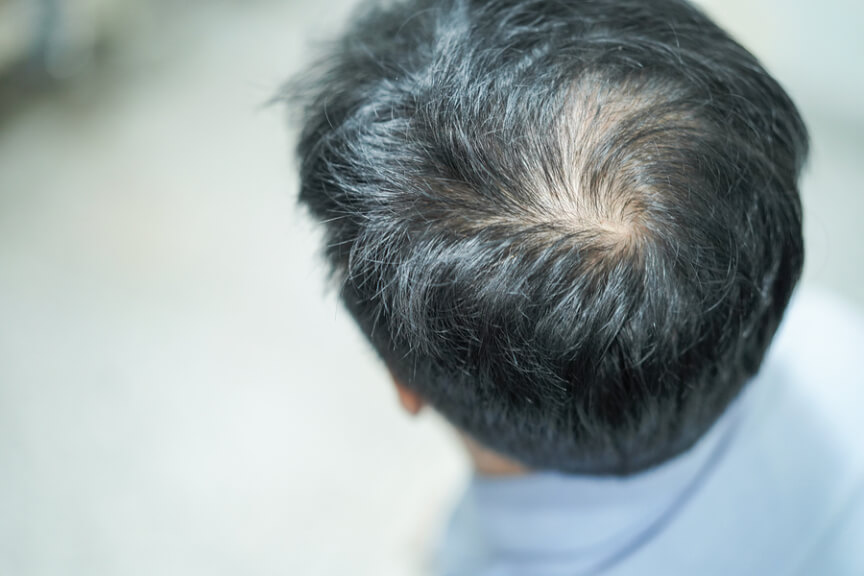 Acne Laser Treatment, Hair Transplant