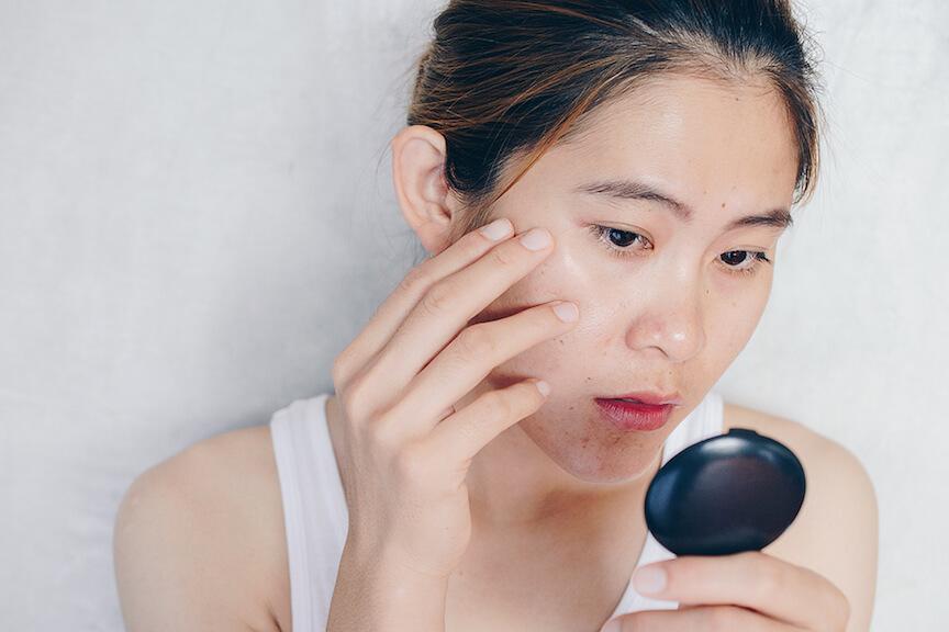 Rejuran Healer, Acne Scar Treatment