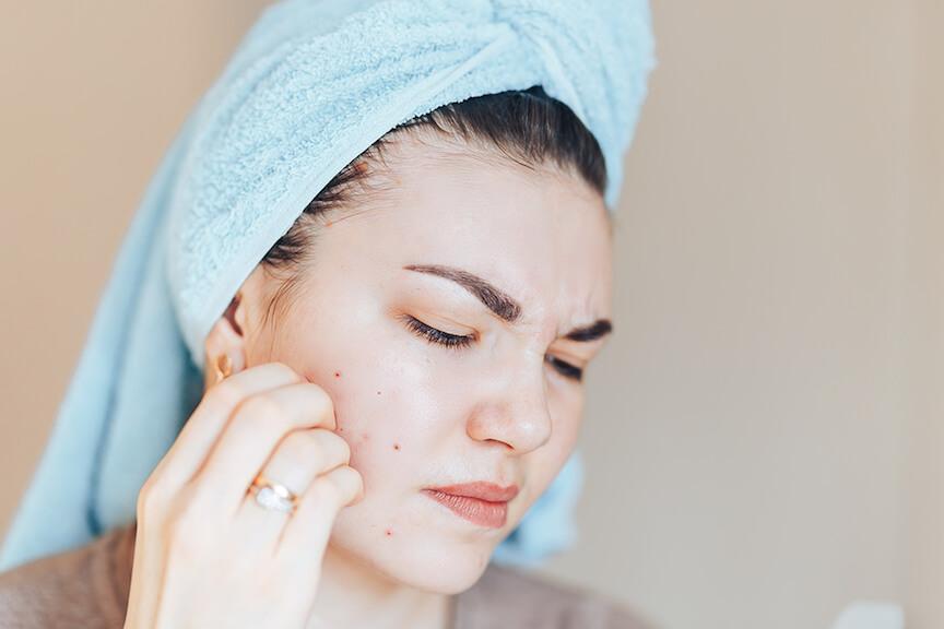 Acne Treatment, Best Acne Spot Treatment