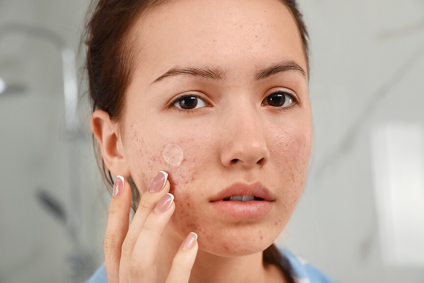 Acne Treatment, Permanent Cure For Acne