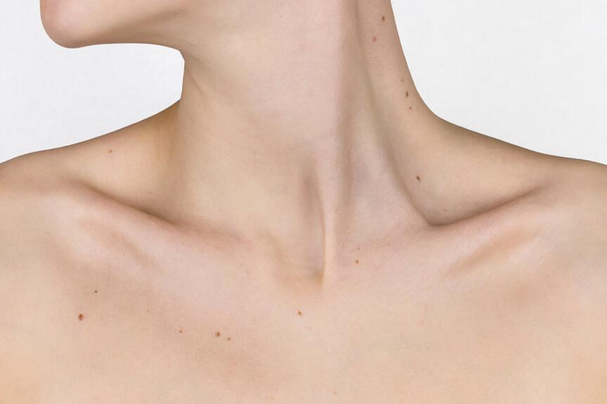 Acne Scar Treatment, Acne Scar Removal