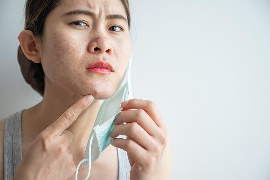 Acne Treatment, Acne Treatment Singapore