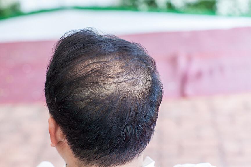 Hair Loss Treatment Price, Hair Transplant