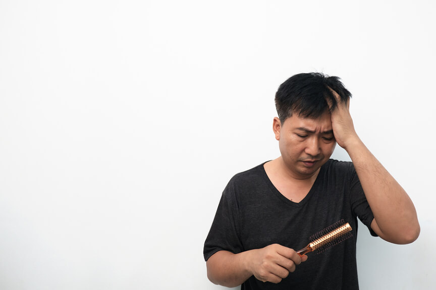 Hair Loss Treatment, Hair Loss Treatment Singapore